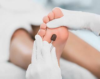 Medizinische Fußpflege jetzt öfter Kassenleistung